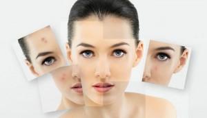 Ways to acne